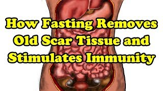Fasting Benefits - How Fasting can remove old scar tissue and Stimulate our Immune system