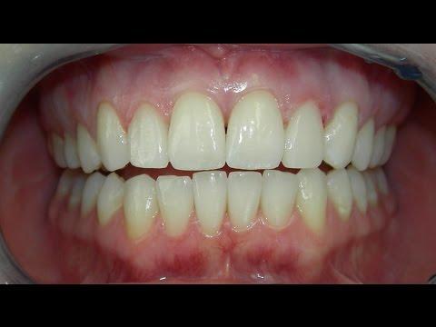 Los Angeles Dentist - Cost of Dental Veneers