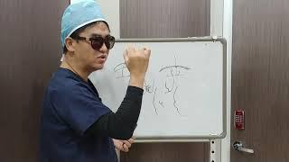 의사인 내가 쌍커풀을 한다면 의사선택하는 기준