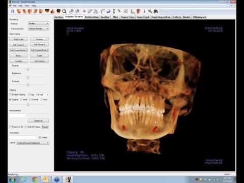InVivo  (Anatomage) Tracing a Nerve
