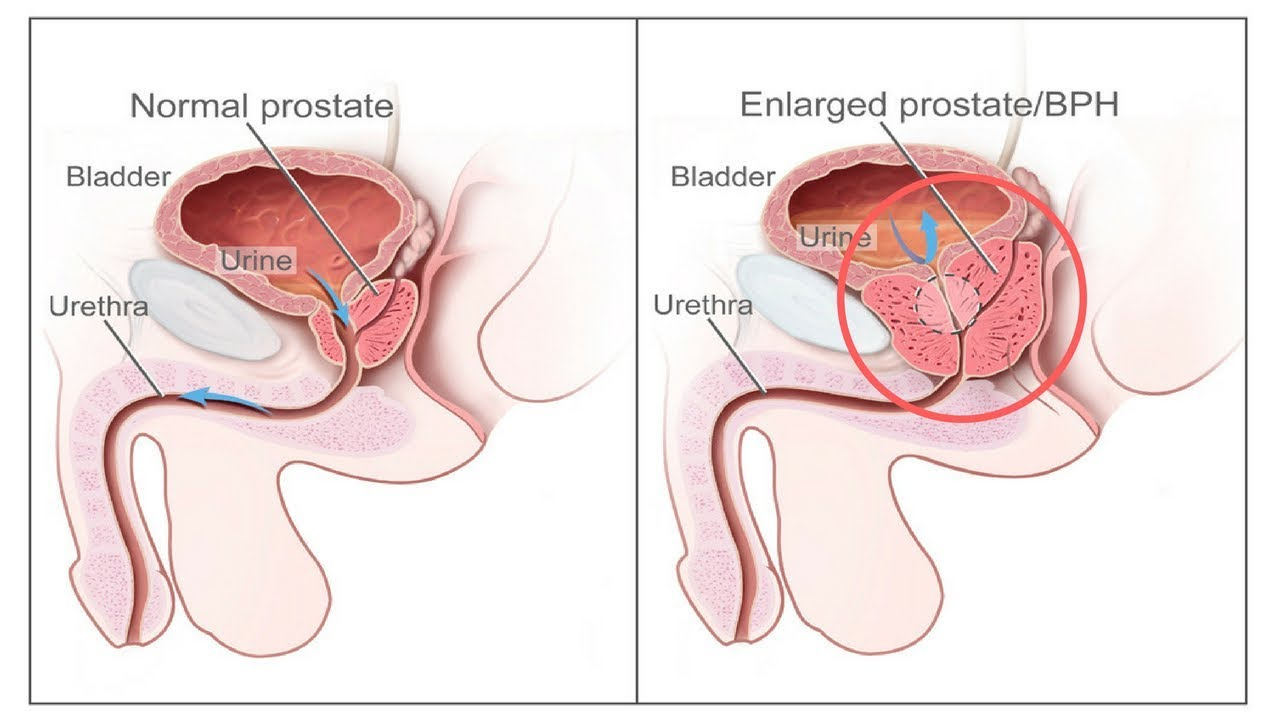 small resolution of prostate cancer treatment and radiation injury complications