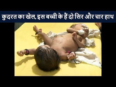 कुदरत का खेल, इस बच्ची के हैं दो सिर और चार हाथ | News18 Hindi