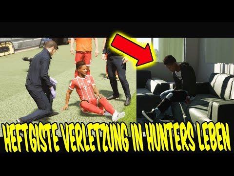 FIFA 18 THE JOURNEY 2 - Die SCHWERSTE VERLETZUNG in HUNTERS LEBEN! ⚽🔥 FifaGaming Karrieremodus #15
