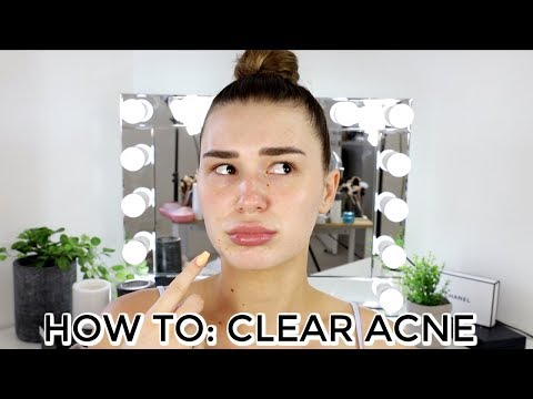 HOW TO CLEAR ACNE ON THE HOLIDAYS | Shani Grimmond