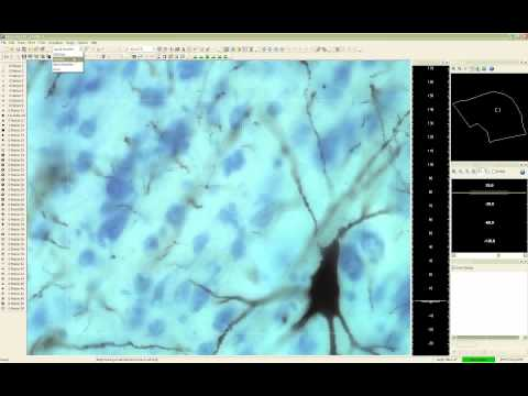 Webinar: Using Neurolucida  for Neuron Reconstruction