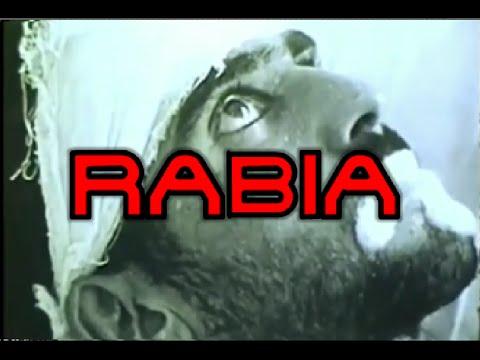 RABIA EN HUMANOS (VÍDEOS REALES)