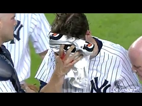 Yankees Pitcher Bryan Mitchell Takes Line Drive To The Face