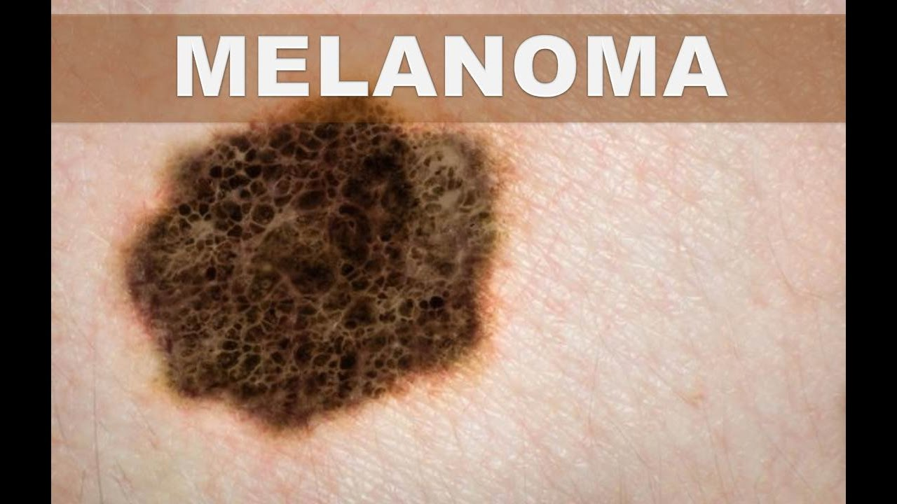 Estos son los síntomas del melanoma o cáncer de piel que no debes ...
