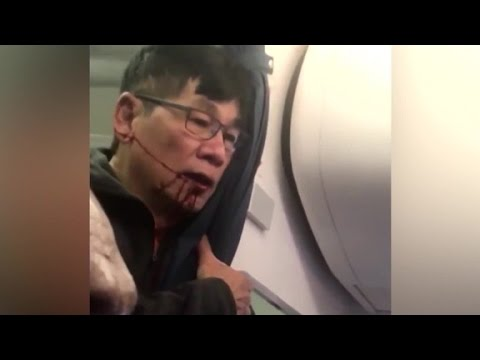 Attorney: United passenger a poster boy for us