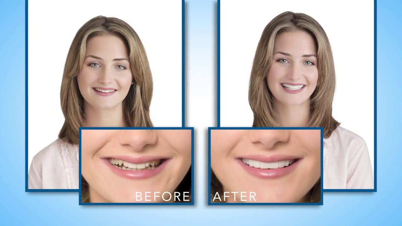 Dental Lab Provisional Services - Snap-On Smile Temporary