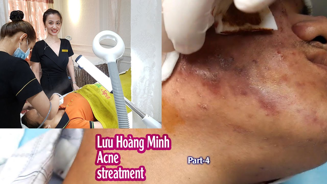 Acne treatment reputation, effective at Hien Van Spa|383I Lưu hoàng Minh-part-4