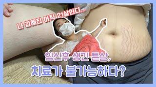 만삭무게93kg 얻은 거라곤 튼살뿐|튼살치료|튼살은 회…