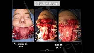L'allotransplantation du visage