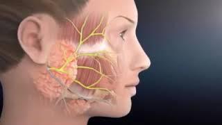 Atuação fonoaudiológica na Paralisia Facial