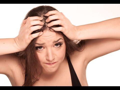Алопеция у женщин - что это такое? Лечение алопеции у женщин
