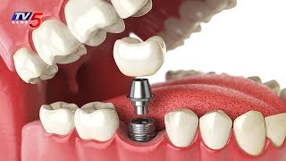 Dental Implants & Advanced Dental Treatments   Partha Dental   Health File   TV5 News