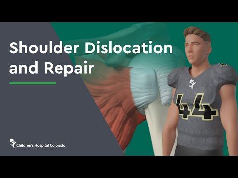 Shoulder Dislocation and Repair