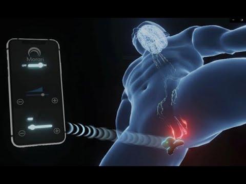 Morari Medical Reports Progress in Development of Wearable...