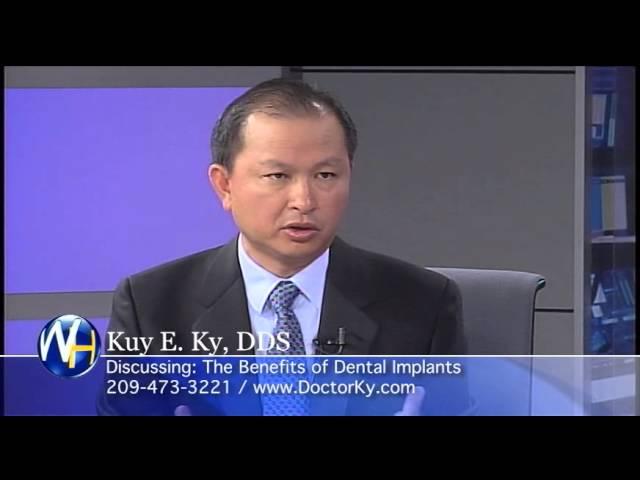 Single Tooth Implants, Stockton, CA Dentist, Kuy E. Ky