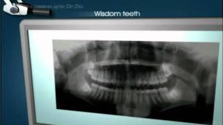 Рентген(Обучающее видео для пациентов стоматологических клиник., 2009-08-15T18:40:43.000Z)