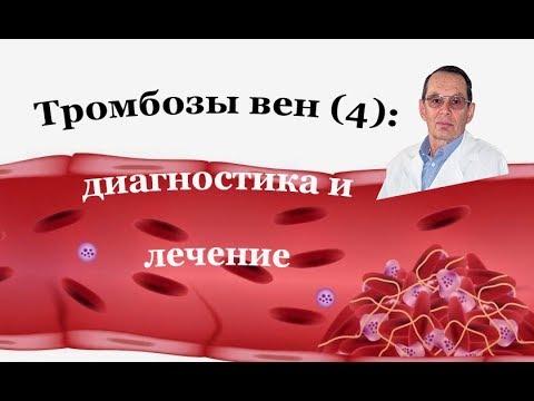 Тромбоз вен (4): Диагностика и лечение венозного тромбоза