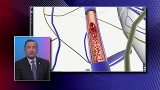 DEEP VEIN THROMBOSIS- How To DIAGNOSE & TREAT/  Venous Diseases.