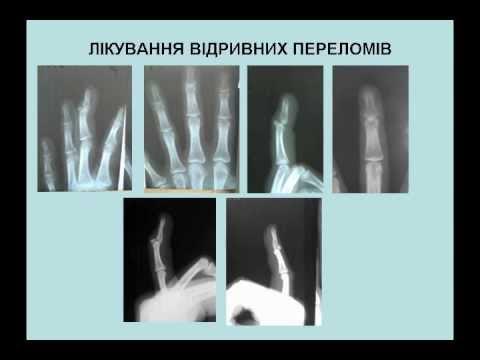 Ответы@: что такое фаланги пальцев на руке?