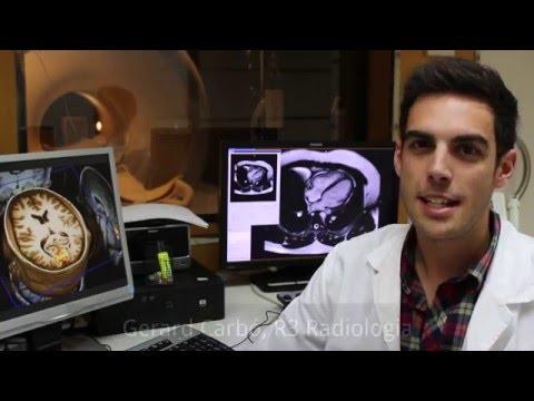 MIR Radiologia. Hospital Trueta Girona (vídeo any 2016)