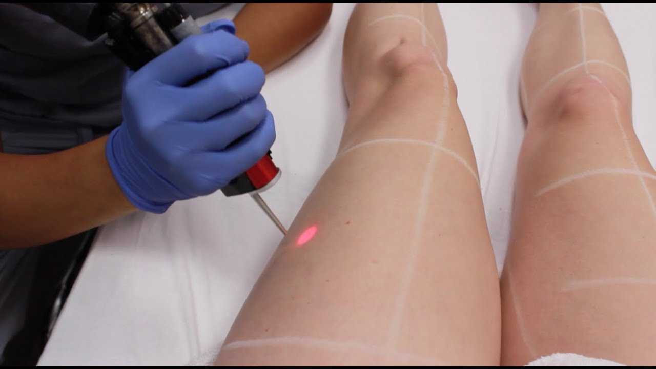 Laser Hair Removal Vlog 5 Laser Vs Electrolysis By Cherry Dollface Youtube