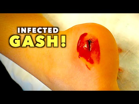 INFECTED GASH ON HER HEEL...(We Had to Deep Clean) | Dr. Paul