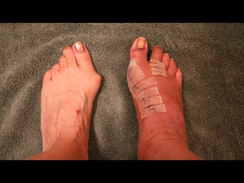 BUNION SURGERY - GOT THE STITCHES OUT & SOME BAD NEWS