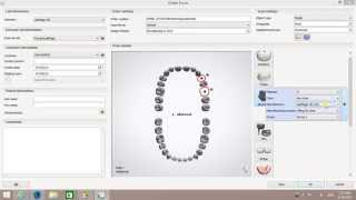 How to create a Positioning Guide Order in 3Shape Dental System 2015 by  LabMagic 3D CAD