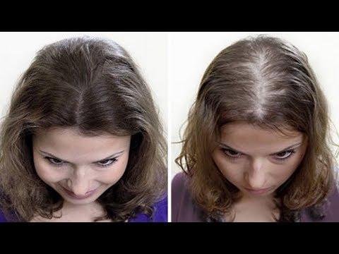Выпадение волос! Лечение народными средствами! Четыре самых эффективных маски для ваших волос!