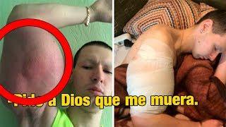 El Hulk Ruso Pide a Dios su Muerte - El dolor es insoportable