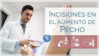 Aumento de pecho: tipos incisiones en el abordaje mamario | Dr. Godoy | Clínicas LeClinic's