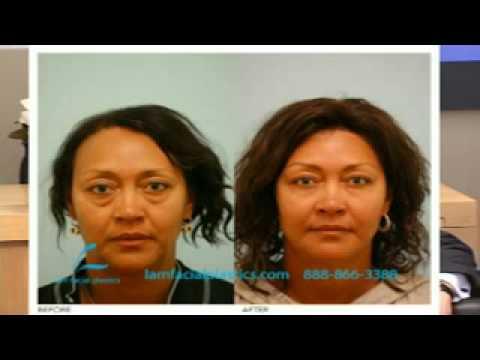 Cosmetic Surgery Dallas: Fill Versus Lift