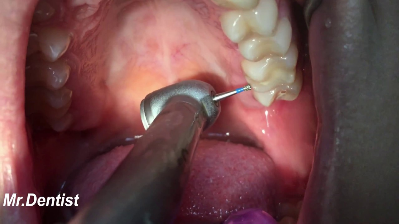 Tooth cavity filling youtube tooth cavity filling solutioingenieria Choice Image