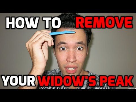 How To Remove Your Widow S Peak Tutorial Youtube