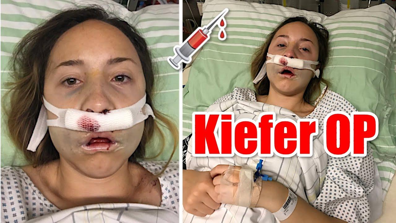 Operation überbiss Kosmetische Operation