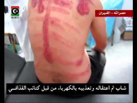 Gaddafi militia torture libyan guy with electricity.flv
