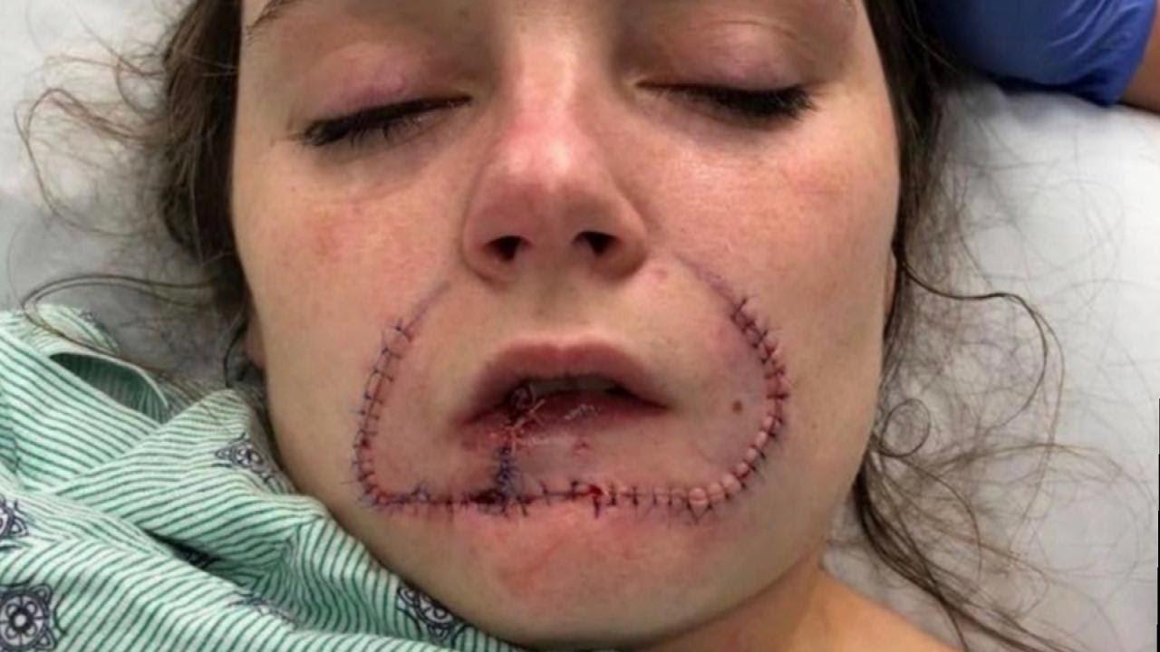 Woman Gets Surgery to Restore Lip Her Ex-Boyfriend Bit Off - YouTube