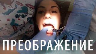BEAUTY VLOG массаж, эпиляция, стрижка, брекеты, маникюр и педикюр :) | Dasha Voice