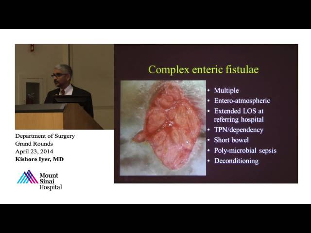 Abdominal Surgical Challenges - A Transplant Perspective