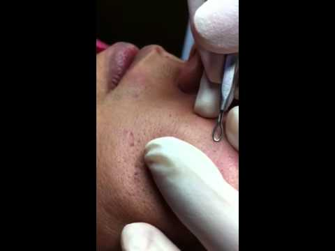Comedone Extraction - YouTube
