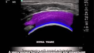 большой разрыв тканей в плечевом суставе