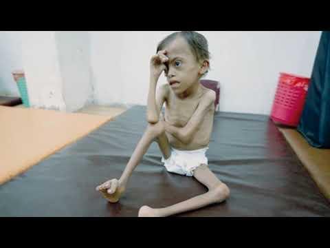 Yemen's Health Crisis