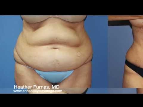 Tummy Tuck Explained with Pizza Dough