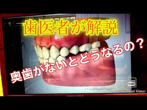 重度の歯根破折歯を抜かずに保存したケース(根管治療、虫歯 ...