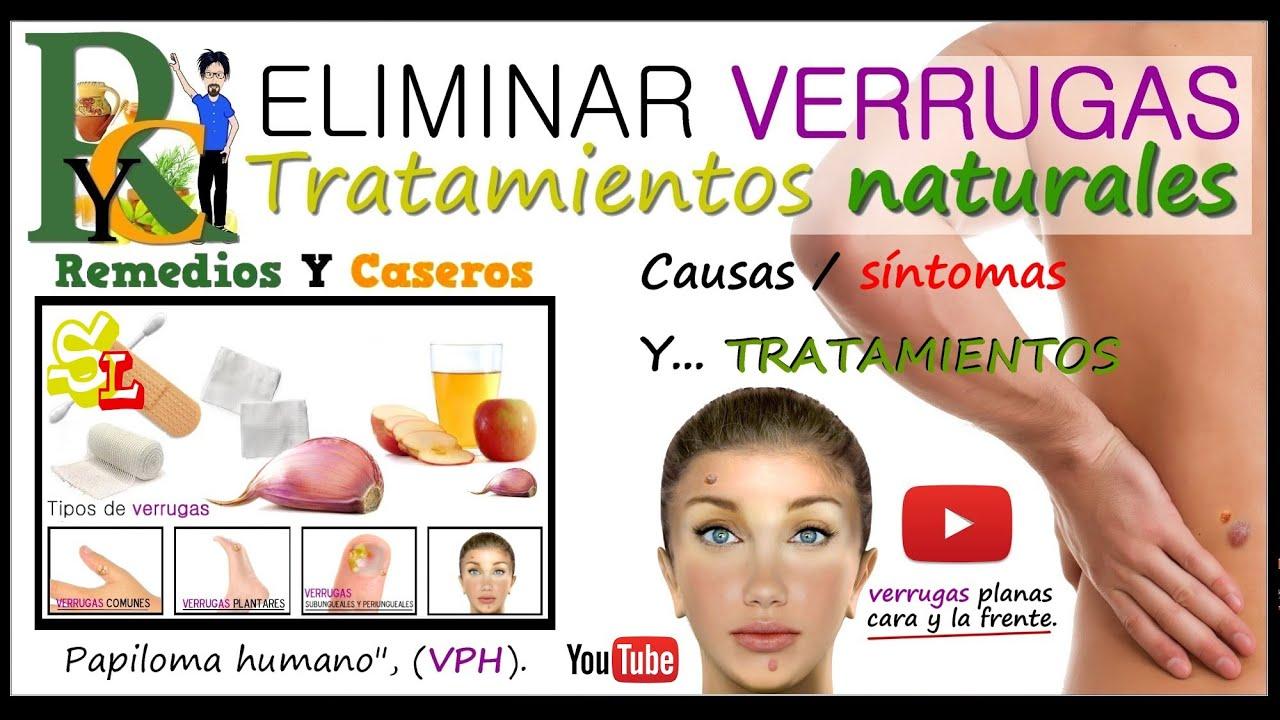 Remedios caseros para eliminar verrugas remedio para for Productos para eliminar pececillos de plata