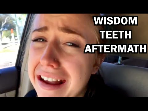 hilarious wisdom teeth aftermath deep thoughts by ansley